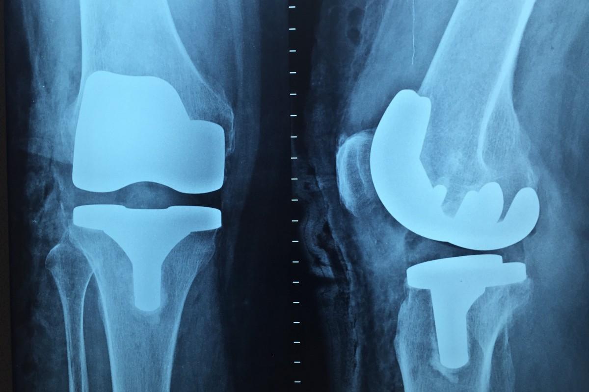 Ortopedia - Chirofisiogen