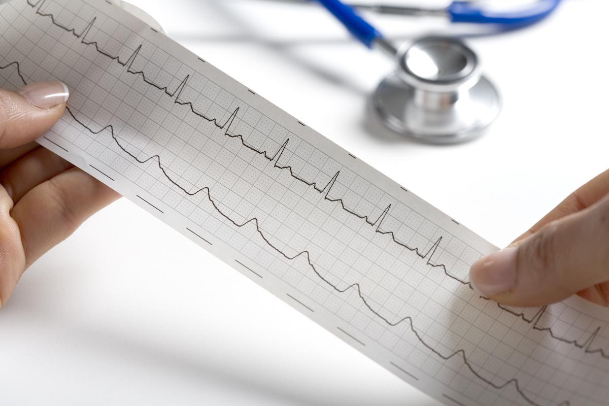 Chirofisiogen-Visita-Cardiologica