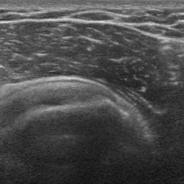 Chirofisiogen-Center-Ecografia-Osteoarticolare-min