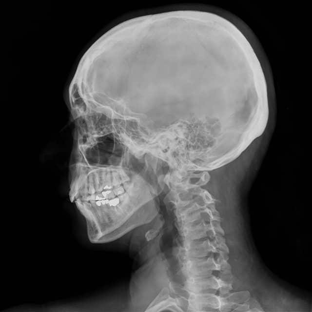 Chirofisiogen-Center-RX-Cranio-min