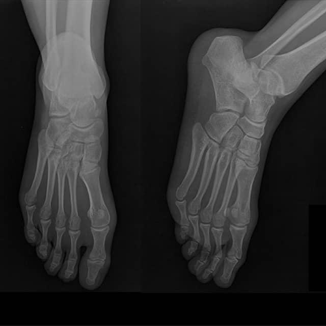 Chirofisiogen-Center-RX-Osteoarticolare-Piede-min