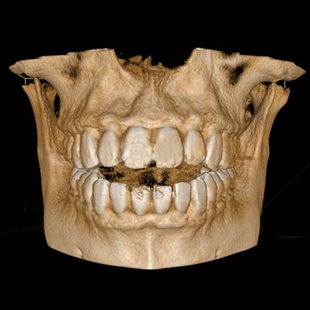 Chirofisiogen-Center-TC_Conebeam-Arcate-Dentarie-min