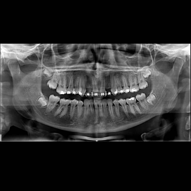 Chirofisiogen-Center-rx-Ortopanoramica-min