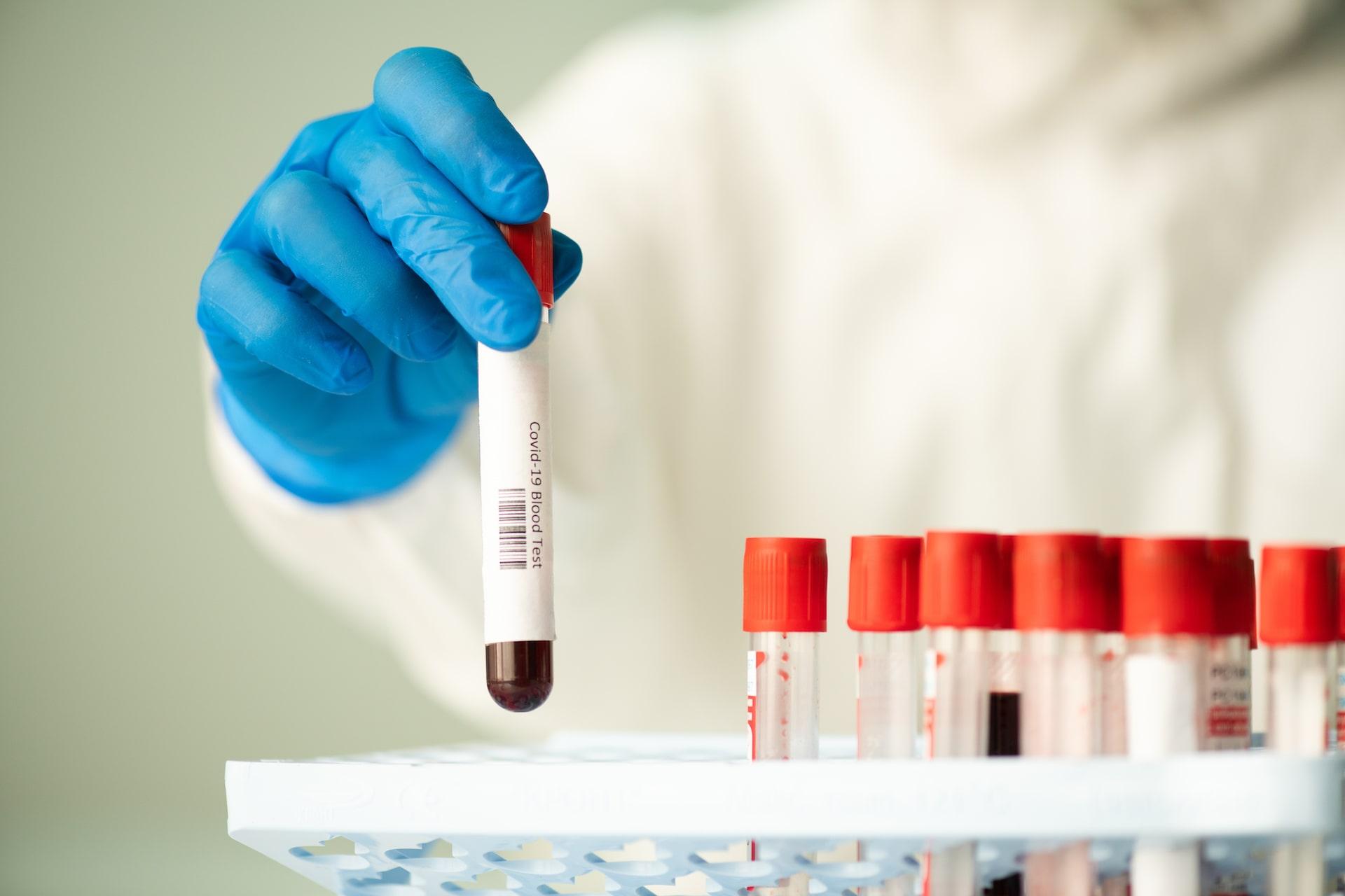 Chirofisiogen-Center-COVID-19-test-min