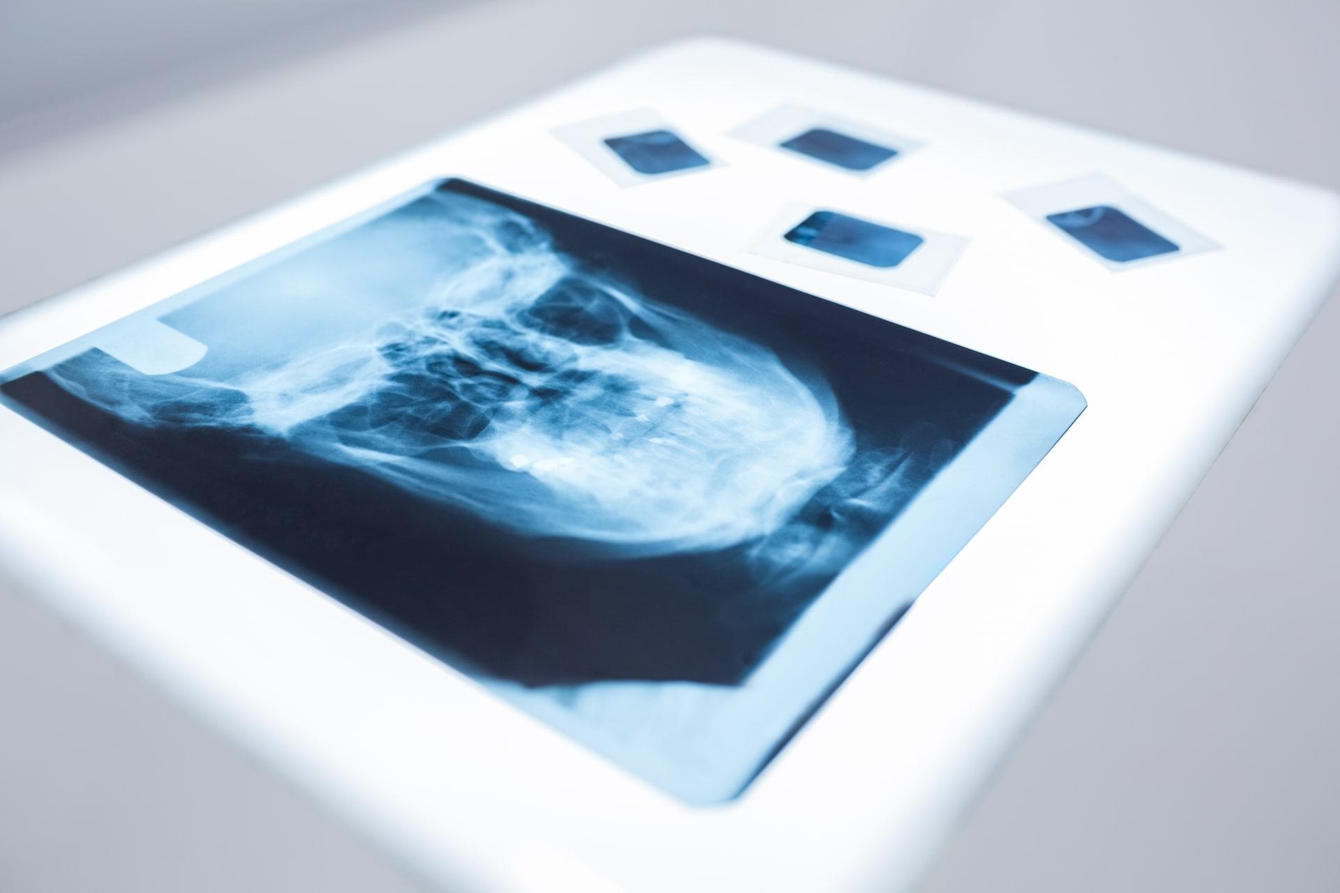 Chirofisiogen-Center-Check-up-analisi-osteoporosi-min